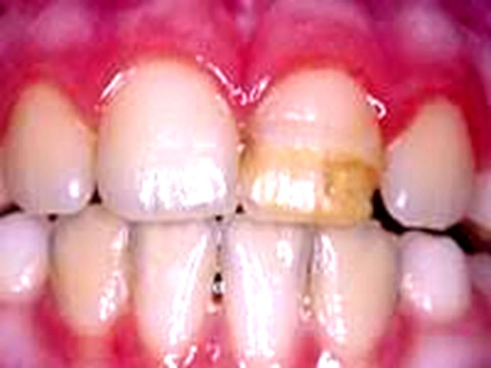 Süt dişlerinde meydana gelen travma sonrası daimi dişte oluşan renklenme