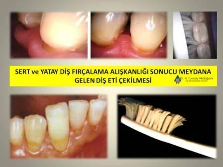 sert fıçalama sonucu diş eti çekilmesi