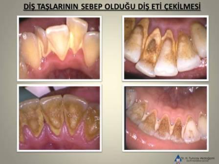 Diş taşının sebep olduğu dişeti çekilmesi