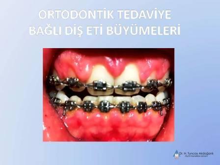 Ortodontik Tedavide Dişeti Şişliği