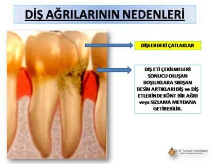 Diş agrisi