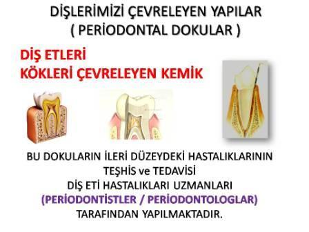diş eti hastalıkları tedavisi