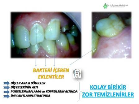 Dişlerde temizlenemeyen yerler