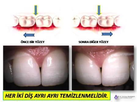 Diş ipi ne işe yarar?