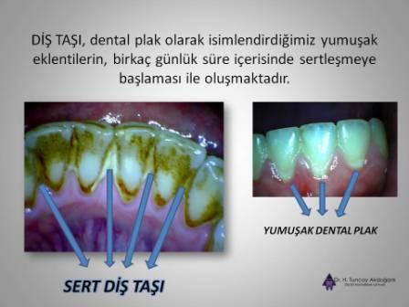 Diş taşı oluşumu