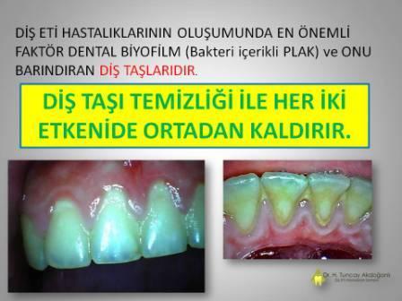 Diş taşlarının temizliği