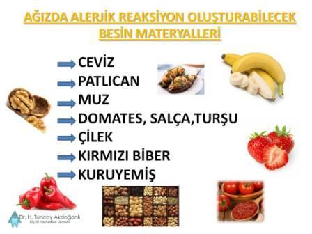 Ağızda alerji yapabilen besin maddeleri