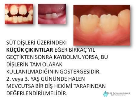 Süt dişlerinde Aşınma