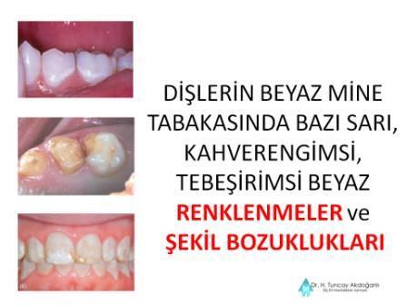 Süt dişlerinde renklenme