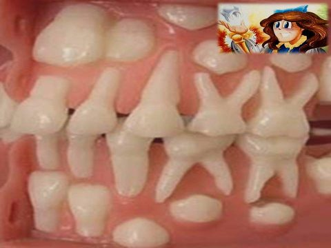 Diş Perisi