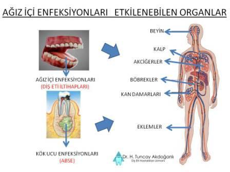 ağız içi  ve ileri düzey diş eti enfeksiyonlarınının etkileyebileceği organlar