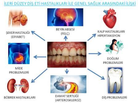 diş eti hastalıkları ve genel sağlık ilişkisi
