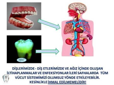 diş eti hastalıkları ve genel vücut sağlığı