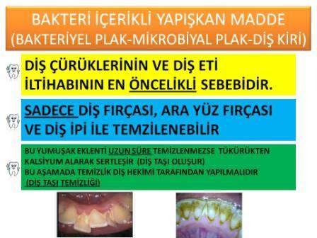 Diş eti hastalığını nedenleri