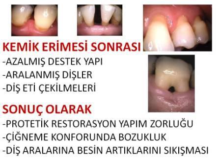 Diş Eti Hastalıkları ve Dişlerin etrafında kemik kaybı