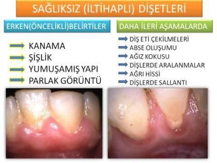 diş eti hastalıkları ve iltihaplı diş eti